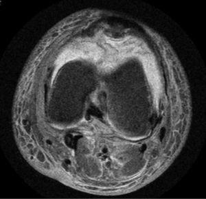 Coronal T2-weighted magnetic resonance image of the left knee of the patient. A hyperintense signal can be observed in the anterior region in different phases compatible with hemarthrosis.
