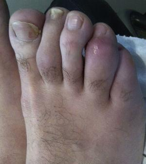 Dactylitis in 4th toe.