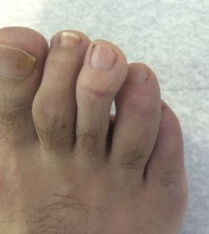 Resolution of dactylitis in 4th toe.