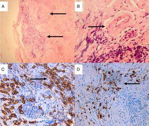 Lacrimal gland biopsy. Hematoxylin–eosin staining: (A) Storiform fibrosis, stromal sclerosis and chronic inflammatory infiltrate (×10); (B) Veins with walls swollen with the infiltration of mononuclear inflammatory cells causing obliteration of the lumen. Immunohistochemical staining (×40). (C) Extensive infiltration of plasma cells expressing CD (cluster of differentiation) 38 (anti-CD38 with 3,3′-diaminobenzidine [DAB] staining, ×40); (D) IgG4-positive plasma cells (anti-IgG4 DAB staining, ×40).