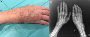 (A) Image of the patient's right wrist. Soft tissue mass located in the region of ulna that responded to pressure and was mobile. (B) Plain bilateral radiographs of the hands. Generalized osteopenia, reduction of the joint space in right wrist. Thickening of soft tissue most evident in the region of the ulnar styloid. Severe distortion of the architecture of the radiocarpal joint and ulnocarpal fossa.