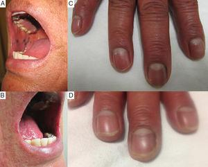 (A) and (B) The presence of hyperpigmented spots on the mucosa of the inner lining of the cheeks and lower lip, with well-defined borders. (C) Presence of brown-colored hyperpigmented bands in the area of the fingernails. (D) Decrease in the intensity of the pigmentation in the area of the fingernails (although it did not completely disappear) 3 years after discontinuing chloroquine.