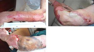 Evolution of skin lesions at first five days of internment: áreas of extensive skin detachment in the context of ruptura of blisters and severe exudation and necrotic áreas.