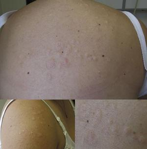Skin-colored papules and plaques on the patient's back and right shoulder, where the skin appears to be lax.
