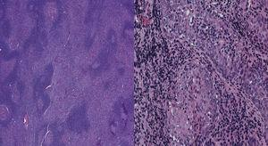 Biopsy of extranodal marginal zone lymphoma of mucosa-associated lymphoid tissue of the parotid gland in case 2. Left image shows Hematoxylin & Eosin (H&E) stain in low-power view. Right image shows H&E stain in high-power view.