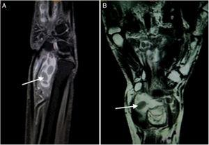 (A) T2W FAT SAT sagittal image show a well defined fluid intensity collection seen along the flexor tendon sheath with presence of hypointense layered rice grain (white arrow) shaped within it suggestive of tenosynovitis with multiple loose bodies. (B) T2W Coronal images show well defined fluid intensity collection anterior to the wrist joint along the flexor tendon sheath suggestive of tenosynovitis. Multiple layered hypointense loose bodies like rice grain are seen within it (arrow).