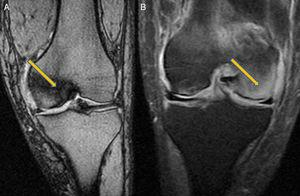 Magnetic resonance imaging: (A) Situation at 10th month. Left knee. Involvement of the internal condyle. (B) Situation at 12th month. Left knee. Involvement of external condyle.