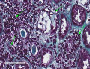 Tubulointerstitial nephritis and a mild case of secondary acute tubular necrosis. Kidney biopsy. Lymphocytary inflammatory infiltration which mainly affects the insterstitium and lymphocyte permeation in the tubular epithelium with partial destruction of it, compatible with TIN. Few tubules present regenerative changes with flat epithelium and cytoplasmatic vacuolisation with nuclei enhanced in size and hyperchromatic and with intraluminal epithelial desquamation (secondary acute tubular necrosis) (Masson's trichrome, 40×).