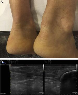 A. Tendon xanthomas on Achilles tendons. B. Ultrasound of the same patient, of the Achilles tendon: a thickened tendon can be seen on a longitudinal slice, of heterogeneous echotexture.