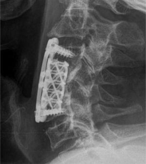 Radiograph of the cervical spine during postoperative follow-up.