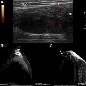 (A) Trapezius (TP) ultrasound scan, longitudinal slice on cephalic edge. A hypoechoic mass is observed, homogenous in appearance and completed contained within the thickness of the muscle with no contact with the fascia (F) or subcutaneous cellular tissue (SCCT). The power Doppler signal is essentially concentrated in peripheral regions. (B) NMR of the shoulder, DP/SPIR sequence to remove fatty tissue. Transversal slice of the trapezius (arrow). In its interior a hyperintense structure with well defined edges is enhanced and this occupies almost all of the muscle matter (*). (C) NMR of the shoulder, T1 sequence, sagittal slice. In this projection the longitudinal extension of the trapezius (arrow) is appreciated and the occupation by the same fusiform, hypointense structure, with respect to the adjacent tissues. (*).