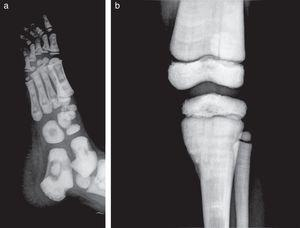 """Oblique lateral projection of right foot (a) in which the appearance of """"bone within bone"""" is identified and anteroposterior projection of the knee (b) in which there is an enlargement of the femur and tibia metaphyses with """"mace"""" appearance."""