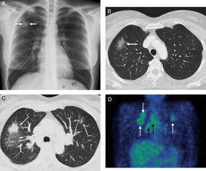 (A) Chest X-ray where a nodular opacity in the URL is observed (arrows). (B) Axial image of the first chest CT (window of pulmonary parenchyma) in which a nodular lesion of ground-glass attenuation is observed (arrow). (C) MIP (maximum intensity projection) axial image of the second chest CT (window of pulmonary parenchyma) in which a radiological progression is observed despite antituberculosis treatment and the galaxy sign: solid nodular opacities (arrows) surrounded by multiple solid 1–2mm nodules. (D) Coronal imaging of SPECT/CT with gallium in which uptake by the pulmonary nodules (white arrows) is determined and by the right pulmonary hilar adenopathies and ipsilateral mediastinum (black arrows).