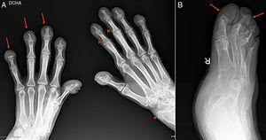 (A) Anteroposterior X-ray of both hands. Thickening of the soft tissues at the level of the distal fingers. Marked destructive changes with acro-osteolysis in all of the distal fingers (arrowed), with formation of flat surfaces in both the fifth fingers, bone proliferation at the level of the left radius and more discretely at the base of several distal fingers (arrow points). (B) Oblique X-ray of the right foot. Re-absorption of all of the distal toes with formation of flat surfaces (arrowed).