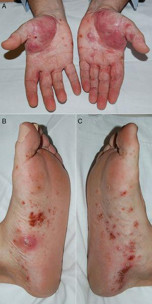 Appearance of pustular lesions, mainly located on the thenar eminences of both palms (A) and on the medial zone of the soles of the right (B) and left (C) feet, showing a tendency to converge and leaving wide zones of flaking and erythema on the hands.