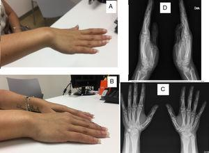 (A and B) Dorsal dislocation of the ulna. (C) Posterior–anterior X-ray of both hands. (D) Lateral X-ray of both hands.