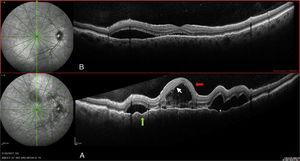 Right eye: (A) On diagnosis. (B) Seven days after diagnosis. Serous detachment>450 (grey arrow) septated (asterisk). Hyperreflective points (white arrow). Retinal pigment epithelial folds (tip of the black arrow).