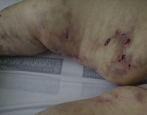 Clinical image of the skin lesions.