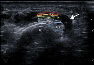 Transverse ultrasound image of the distal region of the right forearm. Showing tenosynovitis (arrow) of the tendons of the I and II extensor compartment as they cross. AL: abductor longus of the first finger; EB: extensor brevis of the first finger; ECRB: extensor carpi radialis brevis; ECRL: extensor carpi radialis longus; R: radius.