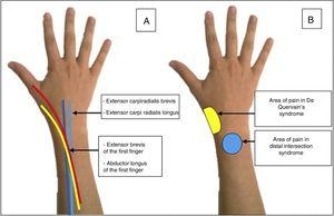 (A) Anatomical path of the tendons involved in distal intersection syndrome. (B) Site of pain in distal intersection syndrome and in De Quervain's tendonitis.