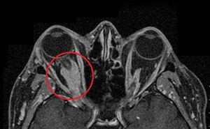 MR imaging with pseudotumour.