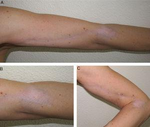 (A–C) Hypopigmented atrophic patch on the elbow, with linear extension along the upper arm.