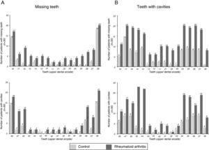 Distribution of tooth absences (A) and cavities (B) in patients with RA and without RA.