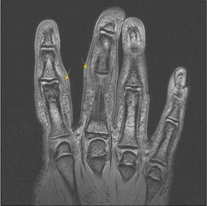 MRI of right hand, showing an increase in soft tissue with altered signal due to oedema of the second, third and fourth fingers (arrows).