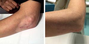 (A) Skin hypopigmentation and subcutaneous fat atrophy in the right elbow of the patient after corticosteroid injections; (B) elbow surface 24 months after fat graft.