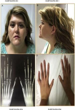 Frontal phenotype (A), lateral (B), hand radiology (C) and arachnodactyly (D). Depressed nasal bridge, face hypoplasia, macrognathia, proptosis, low implantation of the auricular pavilion. Elongated hands and hyperlaxity. Increased length of metacarpals and phalanges.