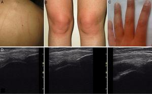 (A) Dermographism observed in case 1. (B) Appearance of the knees 1h after physical activity in case 1. (C) Appearance of the hands in case 2 after isometric dumbbell exercises. (D) From left to right: basal situation of the pre-patellar recess of the patient of case 3, 1h after exercise and 3h later.