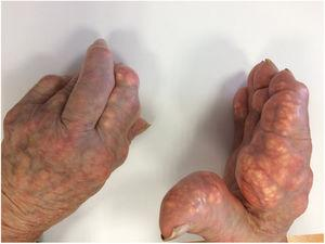 Tophaceous deposits in the hands.