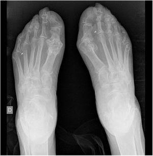 X-ray image of feet: erosion in the first metatarsophalangeal joints.