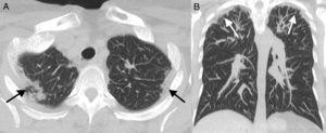 (A) Transversal pulmonary CTA slice. (B) Coronal CTA pulmonary slice. In both slices the presence of subpleural consolidations may be seen, together with predominantly apical bilateral pleural thickening.