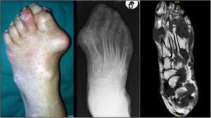 The figure depicts three different cases of foot involvement in tophaceous gout, shown by a clinical picture (left), plain radiography (center) and T1-weighted magnetic resonance (right).