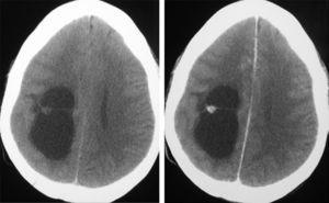 CAT without and with contrast corresponding to a cystic GG of parietal location (case 1).
