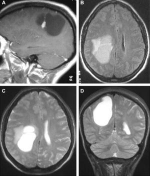 MRI corresponding to the same patient. (A) T1-weighted sequence with contrast. (B)–(D) T2-weighted sequences.