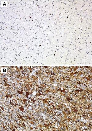 Immunohistochemical stains. (A) Very scant positivity for P53. (B) Positivity for synaptophysin in cells.