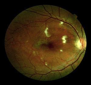 Cotton–wool exudates and macular oedema on ophthalmoscopic examination.