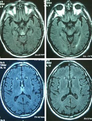 Axial FLAIR images corresponding to Patient 4, showing the typical hyperintensity of periaqueductal and thalamic (left) signals, with clear improvement in the control MRI (right).