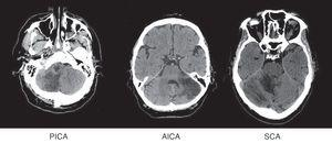 Brain CT: examples of cerebellar infarcts from each of the territories.