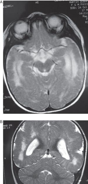 Case 5: Patient aged 6 months. (A) MR axial section at level of the base of the brain showing a wide hyperintense zone in the white matter on both hemispheres. (B) T2-weighted coronal section of the same study. Note the cortical abnormalities and diffuse hyperintensity in the white matter, predominantly in the posterior and anterior areas of the brain.