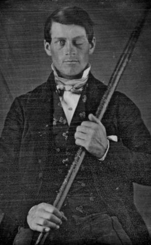 Daguerreotype of Phineas Gage (photograph from the collection of Jack and Beverly Wilgus).