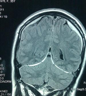MRI FLAIR sequence. Bilateral subdural hygromas.