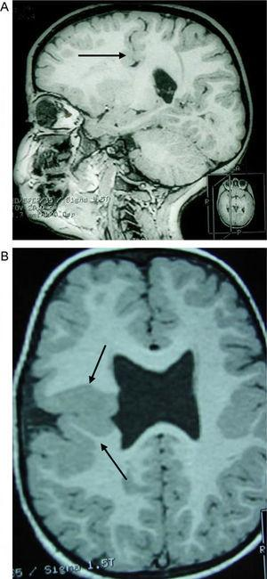 Case 3: unilateral closed-lip schizencephaly in a 2-year-old girl with slight motor impairment on the left side of the body. 3D MRI. (A) Sagittal slice showing closed lips cutting an irregular path from the cortex to the lateral ventricle (arrow). (B) Axial slice showing extensive cortical–subcortical dysplasia in the right hemisphere extending from the sunken area of the cortex to the lateral ventricular wall. The profile is irregular, but this slice does not allow us to see the fused schizencephalic cleft. Small cortical dysplasia with cortical irregularity (arrows).