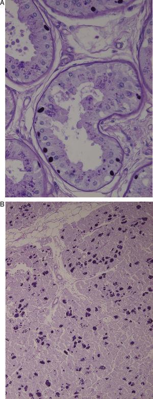 (A) Axillary skin biopsy (PAS stain, 2×400 magnification) showing round-shaped intensely PAS-positive formations in the epithelial cells of the apocrine glands and in the ducts of the eccrine glands which correspond to Lafora bodies. (B) Heart (PAS stain, 1×200 magnification). Multiple Lafora bodies in myocytes.