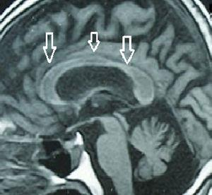 Brain MRI showing atrophy along the entire corpus callosum, indicated with white arrows, in the patient with chronic presentation.