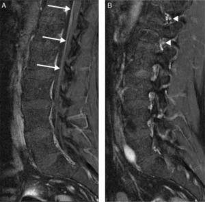 Fat-suppressed T1-weighted MR images with gadolinium contrast. (A) Marked enhancement of the cauda equina roots showing thickening (arrows). (B) MRI of the right intervertebral foramina showing enhancement of L1 and L2 (arrowheads).