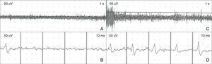 Electromyogram showing spasm of the right orbicularis oculi during a migraine episode. (A, B) Baseline tonic muscle activity coinciding with tonic contraction and reduced palpebral fissure. (C, D) High-frequency bursts of muscle fibre recruitment coinciding with clonic spasms of the upper and lower eyelids.
