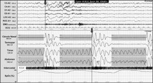 Night-time polysomnography record showing obstructive apnoea (shown in grey bands) in a patient with Chiari malformation type 1. The grey line at the end of the respiratory event (arrow) indicates the onset of the cortical microarousal. This can be viewed in the EEG channel results and in the decrease in oxygen saturation.